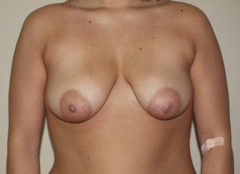 nudes in metropolis movie
