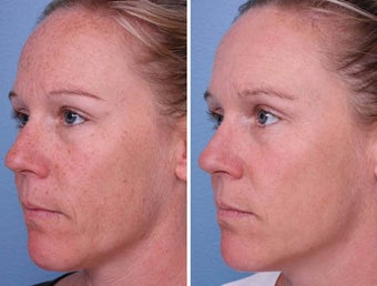 IPL for Brown Spots before 242556