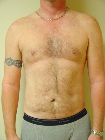 Laser Liposuction after 600013