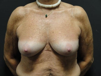 Implant-based breast reconstruction before 867378