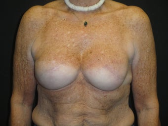 Implant-based breast reconstruction after 867378