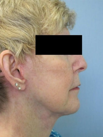 Woman, fillers used to lift cheeks after 851438
