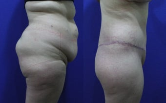 32 Year Old Female Treated for Abdominal Apron & Sagging Buttocks before 1109124
