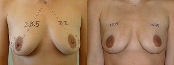Minimally Invasive Scarless Breast Lift before 1197692
