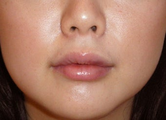 Filler for Lip Augmentation after 124032