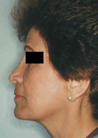 Revision Rhinoplasty before 665082