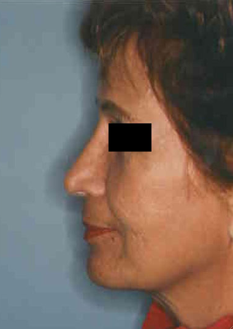 Revision Rhinoplasty after 665082