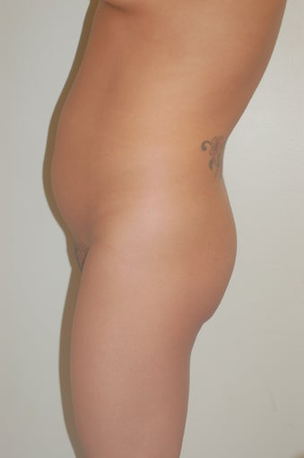 Buttock Enhancement before 905652
