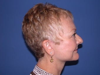 Neck lift after 199102