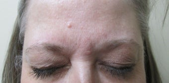 Patient treated for forehead lines after 995319