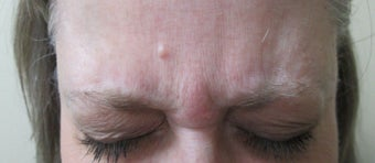 Patient treated for forehead lines before 995319