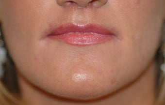 Before and After Lip Lift after 65354