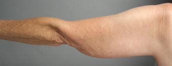 SmartLipo Liposuction of Arms