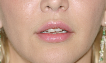 Upper Lip Lift, Fat Transfer and Lower FATMA after 725798