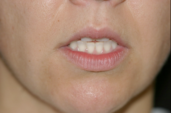 Upper Lip Lift, Fat Transfer and Lower FATMA before 725798