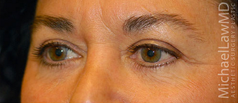 Eye Bags Treatment after 877360