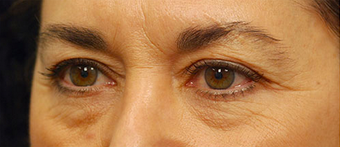 Eye Bags Treatment before 877360