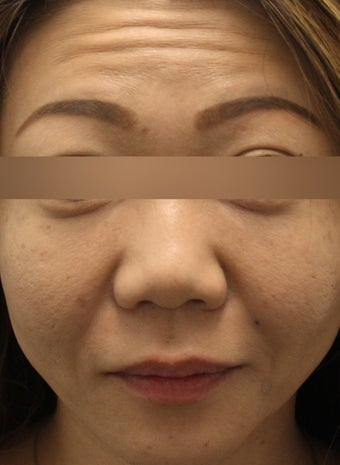Botox to Forehead and Glabella before 1184725