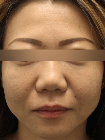 Botox to Forehead and Glabella 1184725