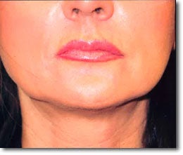 Restylane® and Perlane® after 565996