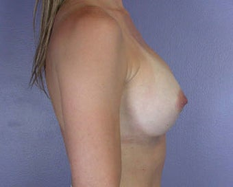 Breast Augmentation after 281429