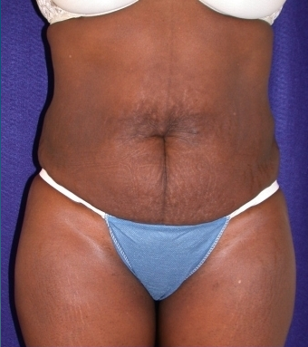 Tummy Tuck (abdominoplasty) before 208476