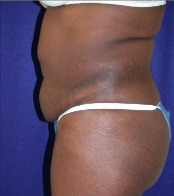 Tummy Tuck (abdominoplasty) 208476