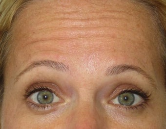 42 year old treated for forehead rhytids (wrinkles) before 811441