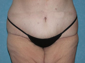 Circumferential Body Lift with Buttock Augmentation after 856591