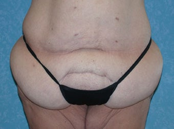 Circumferential Body Lift with Buttock Augmentation before 856591