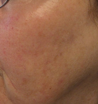 67 year old female with unwanted pigmentary changes on face after 694169