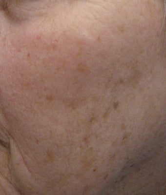67 year old female with unwanted pigmentary changes on face before 694169