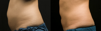 Coolsculpting by Zeltiq before 423159