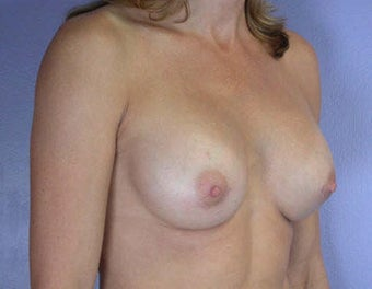 Breast Augmentation after 281423