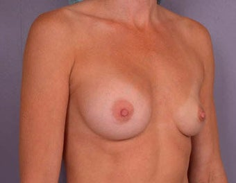 Breast Augmentation before 281423