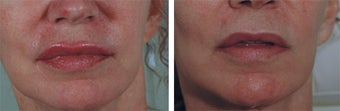 Permanent Makeup Removal Before and After Photos before 1167549