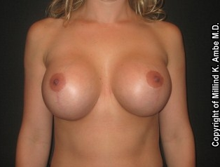 Breast Implant Revision after 542389