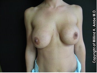 Breast Implant Revision before 542389