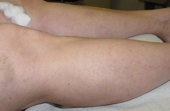 Sclerotherapy of spider veins after 114565