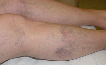 Sclerotherapy of spider veins before 114565