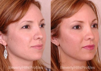 Rhinoplasty before 681865