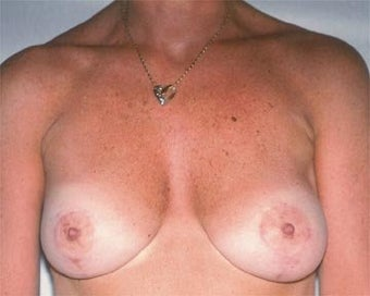Breast Asymmetry Correction after 281315