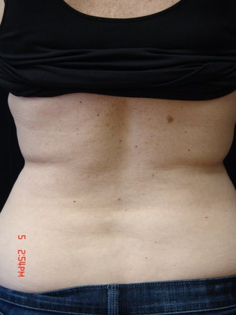 Coolsculpting after 423626