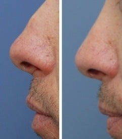 Rhinoplasty before 555765