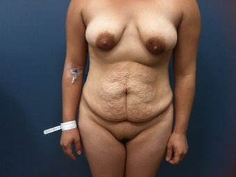 Hourglass Tummy Tuck by Dr. Wilberto Cortes before 371930