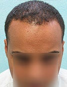Head and Body Hair FUE- SFET for African American Patient after 195675