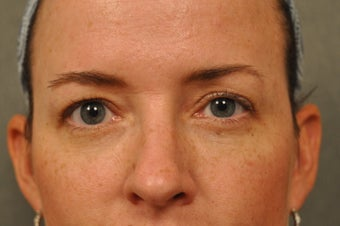 41 Year Old Female with Under Eye Shadows after 975039