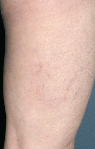 Sclerotherapy after 931542