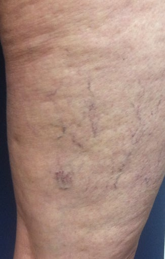Sclerotherapy before 931542