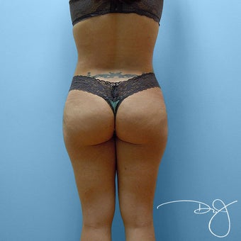 Brazilian Buttock Augmentation after 864277
